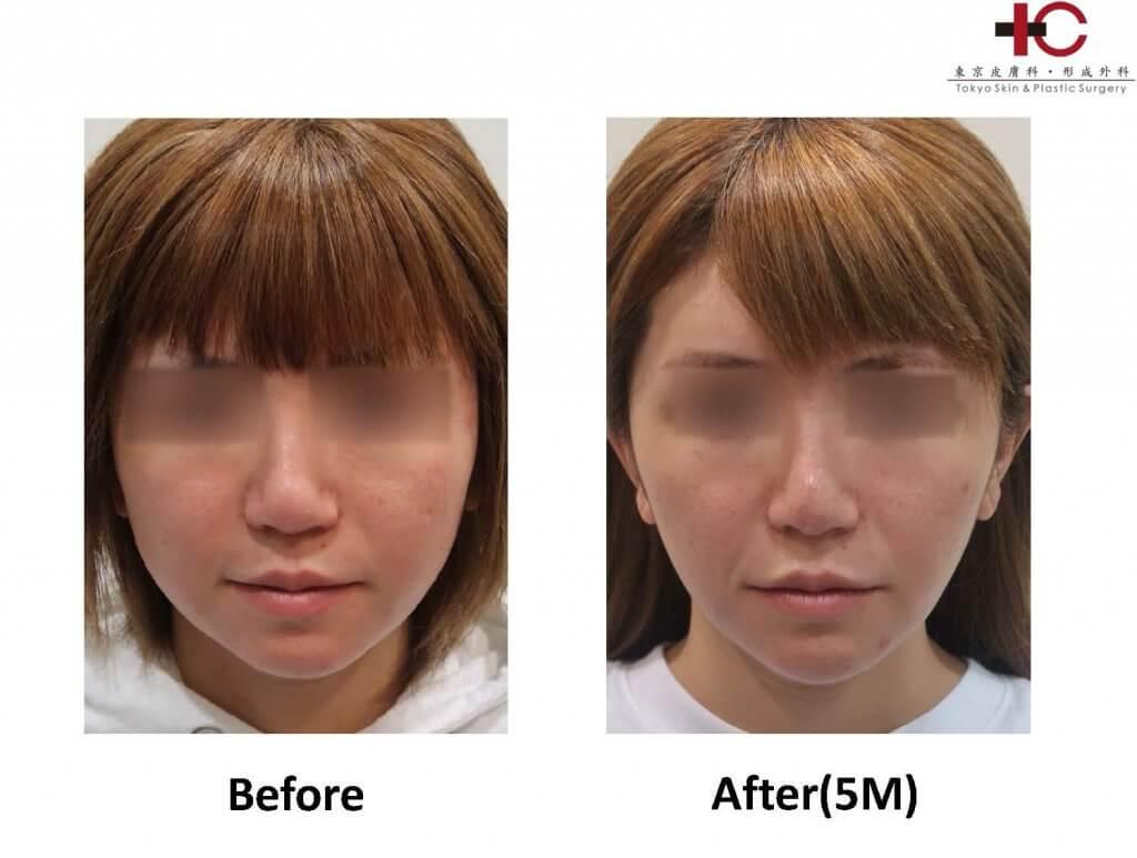 フェイスタイト・アキュタイト-facial antiaging-