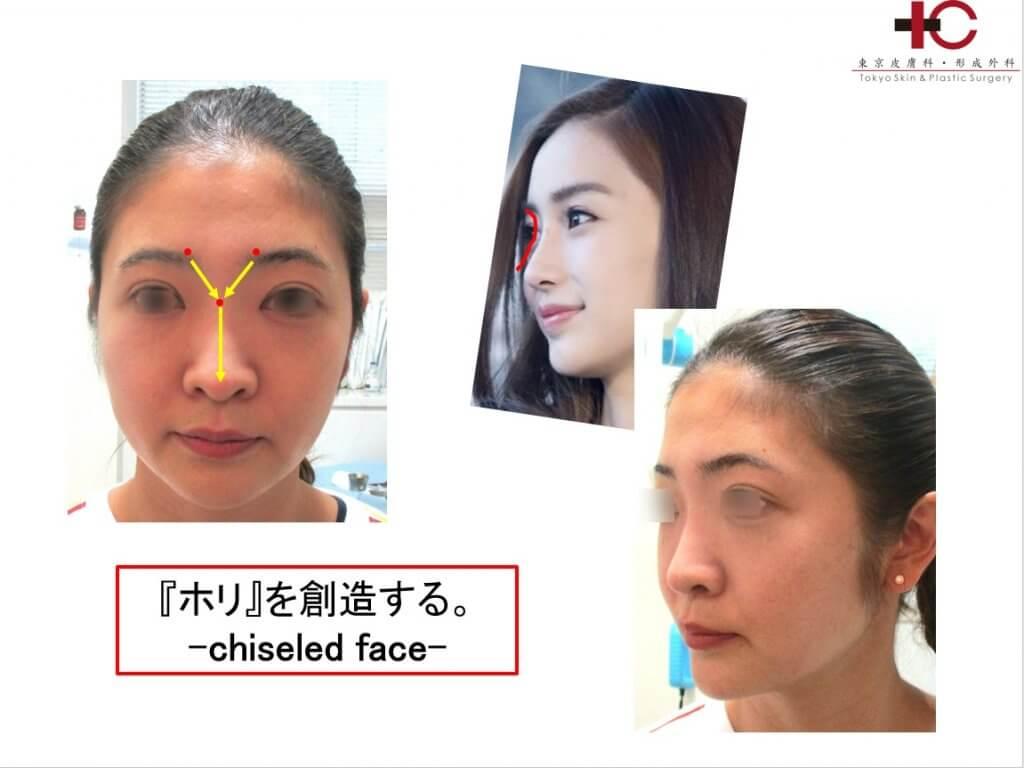 PCLスレッドで彫刻のように立体的なラインを-facial sculpturing-
