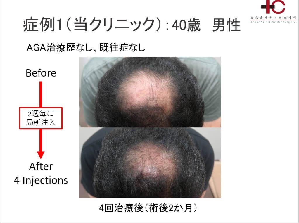 新しい再生治療での育毛治療の可能性 -autologous cytokine rich serum-