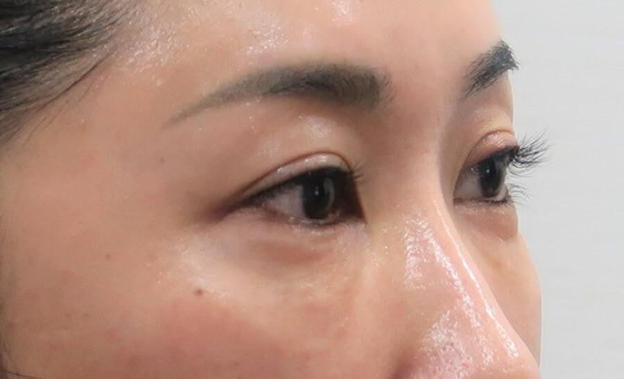 目の下のふくらみ・たるみ諦めていませんか?⑧ -facial antiaging! (手術の詳細解説編;閲覧注意!!)-