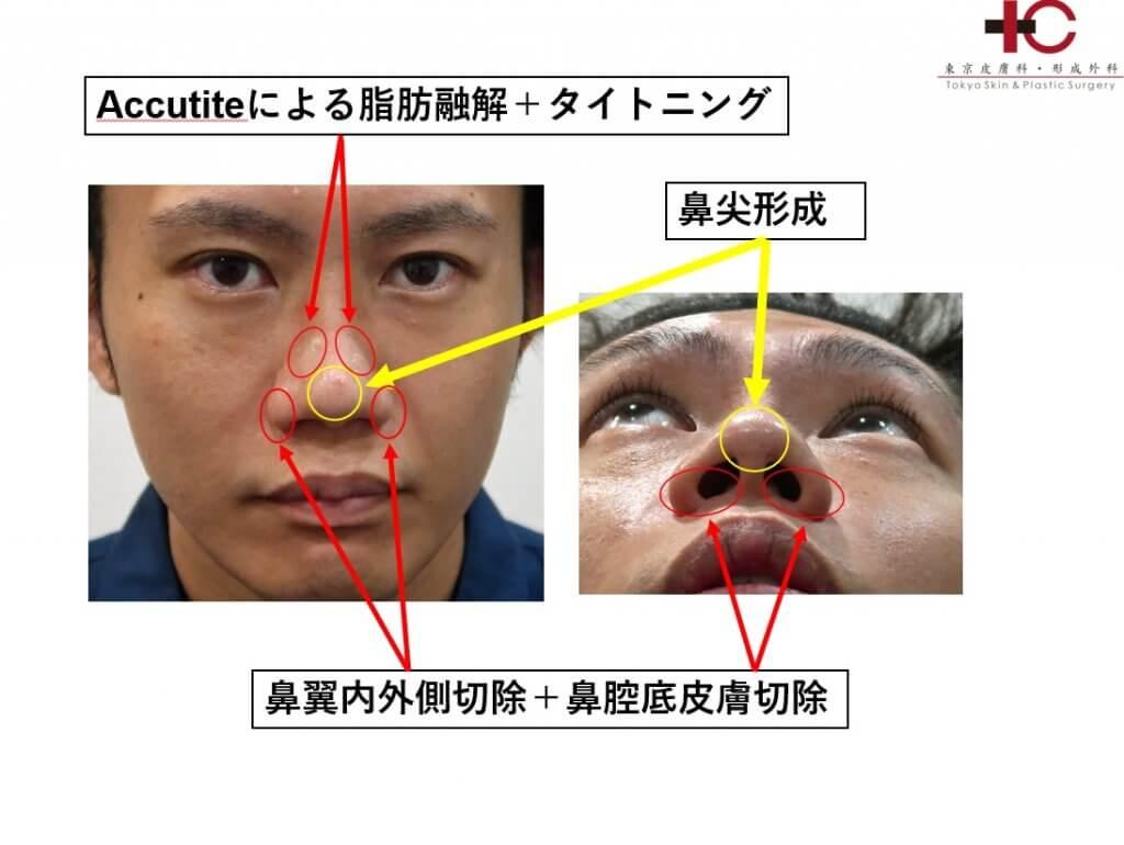 鼻 の 軟骨 が ない