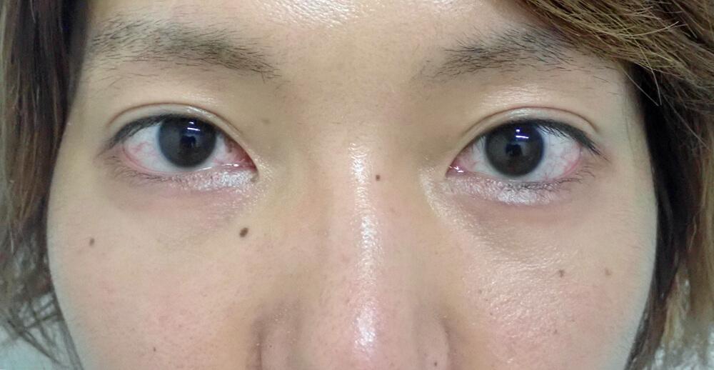 目元を華やかに!!-黒目整形で眼ヂカラup!!②-