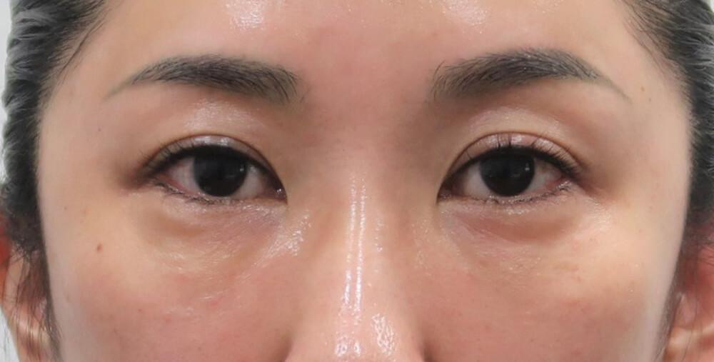 目の下の腫れ アレルギー