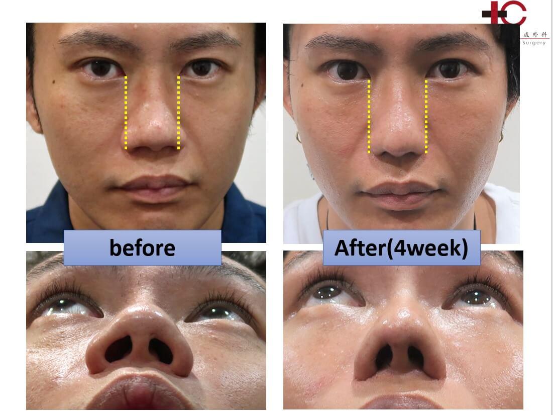 存在感のない鼻を目指して-切開での鼻翼縮小編①- Dr. hideyoshi ...