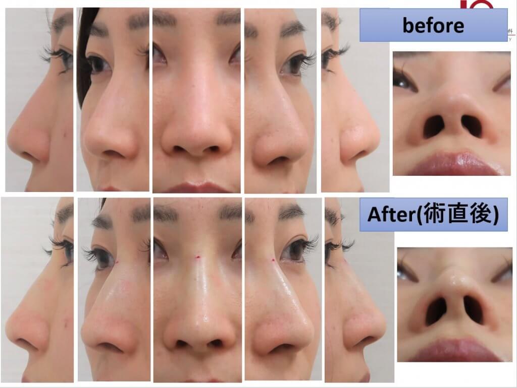 PCLスレッドでプチ隆鼻術、プチ鼻尖形成術