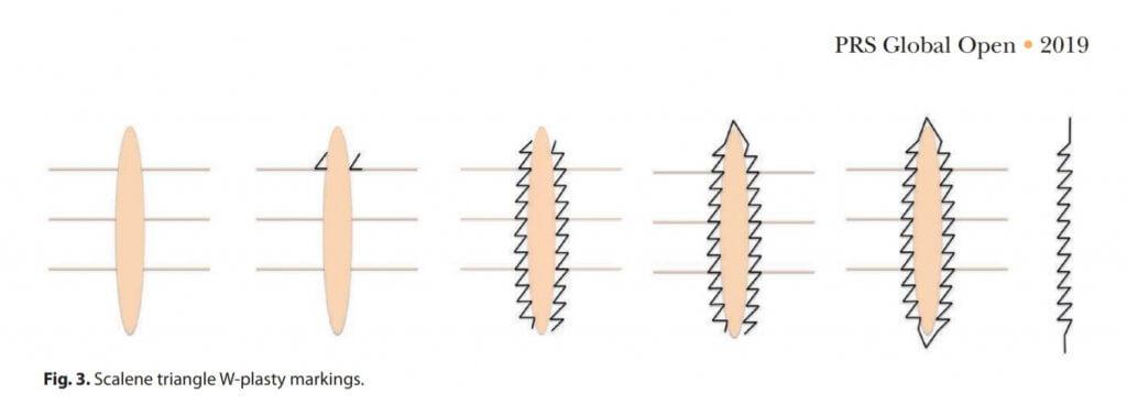 傷跡の修正について③-scar revision-