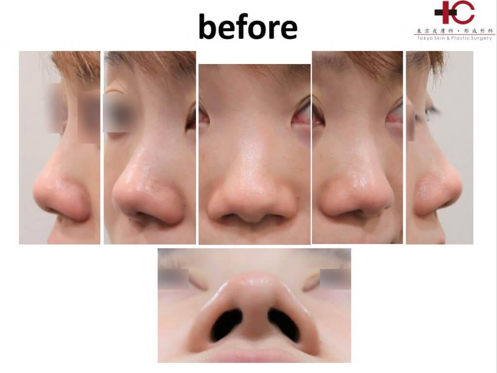 存在感のない鼻を目指して-クローズド法での鼻尖形成編②-