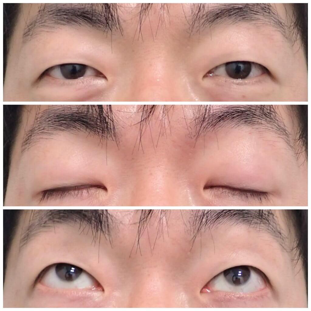瞼の手術は奥が深い②