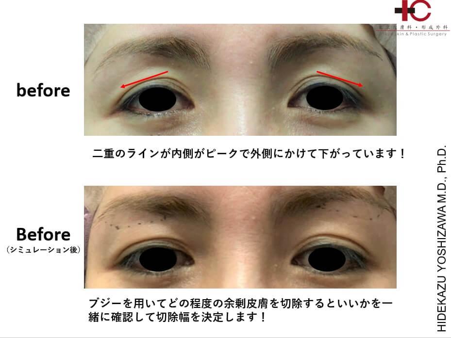 瞼の手術は奥が深い④