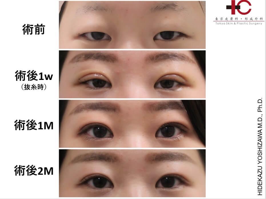 瞼の手術は奥が深い⑤