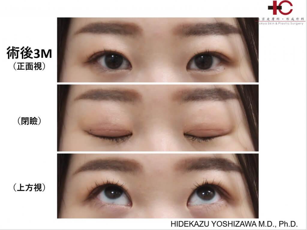 瞼の手術は奥が深い⑥