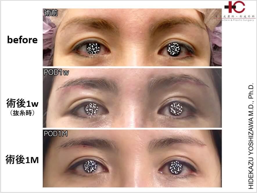 瞼の手術は奥が深い⑦