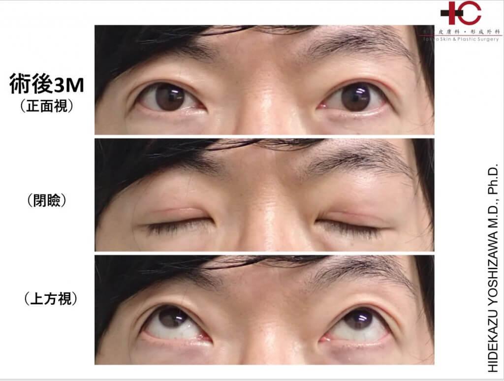 瞼の手術は奥が深い⑧