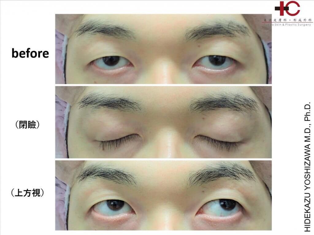 瞼の手術は奥が深い⑨